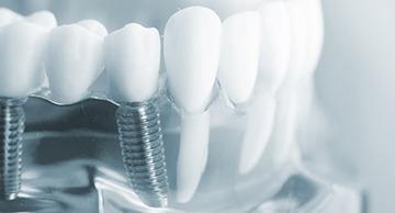 Curso de Aperfeiçoamento Cirúrgico em Implantodontia